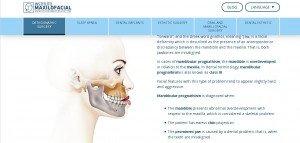 orthognathicSurgery1